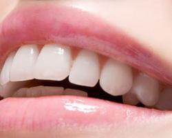 Методики отбеливания зубов - центр стоматологии «Тихонова» в Туле